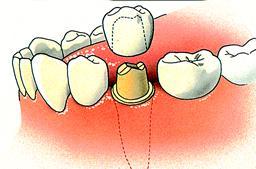 1_Kroon, een kapje over een tand of kies